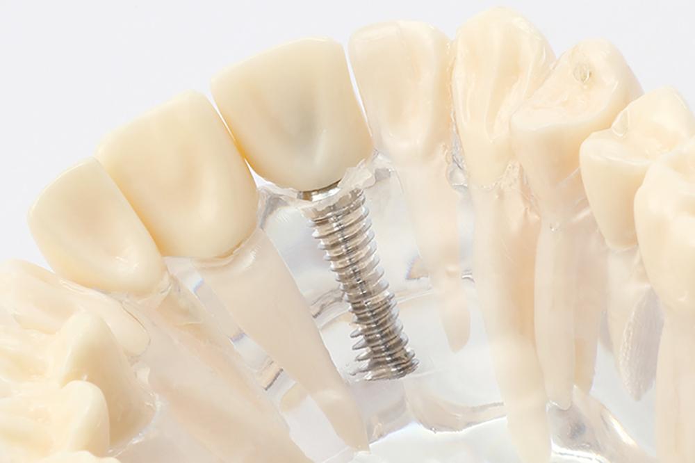 天然歯と変わらない機能・審美性を再現するインプラント